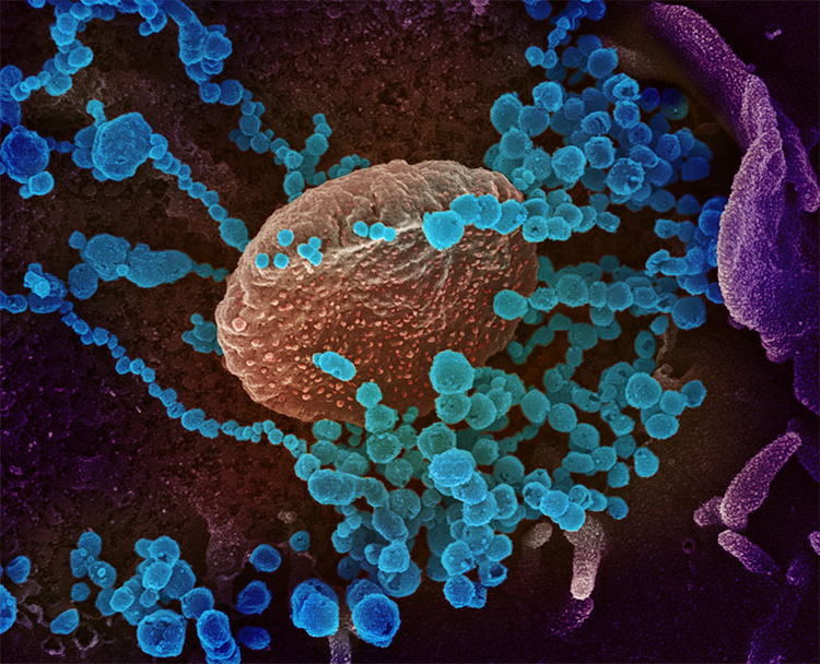 Illustration of novel cornoavirus SARS-CoV-2